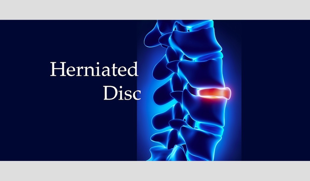 spinal hernia and erectile dysfunction